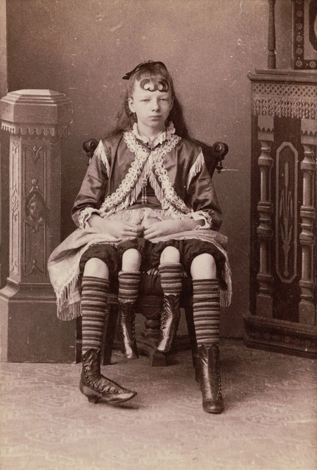 myrtle-corbin-4-legged-freak